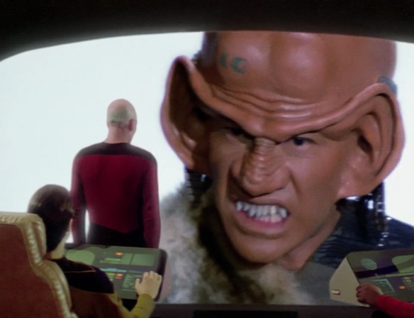 The Ferengi may be on par with the Federation when it comes to technology, but certainly not dental hygiene.